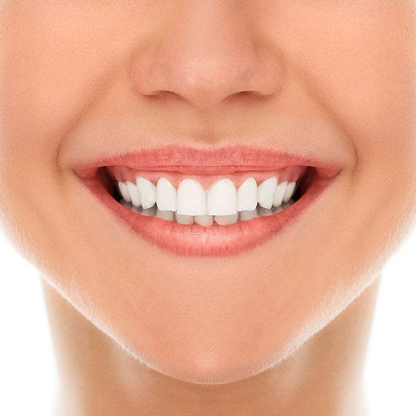 Beautiful smile after cosmetic dentistry including Zoom Teeth Whitening