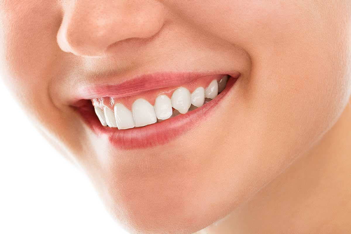 A beautiful smile after Cosmetic Dentistry