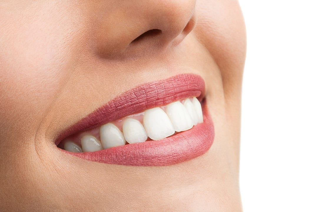 Beautiful smile after Teeth Whitening
